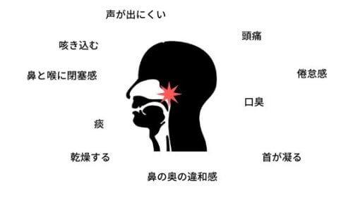 上咽頭炎 bスポット療法 治らない 病院 何科へ行くか 症状 治療 期間 炎症 慢性