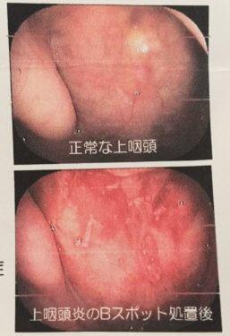 上咽頭炎 bスポット療法 治らない 病院 何科へ行くか 症状 治療 期間 炎症 慢性 塩化亜鉛液 出血