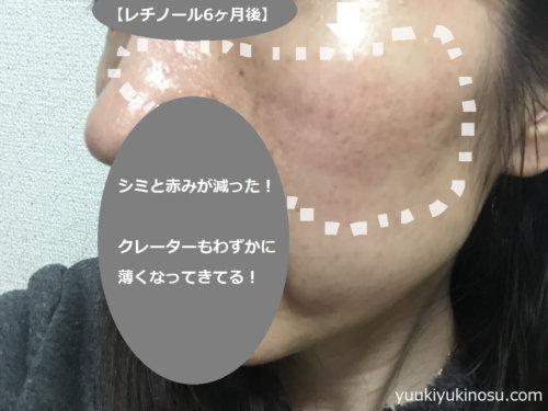 鼻クレーター 治す
